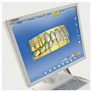 CEREC Design